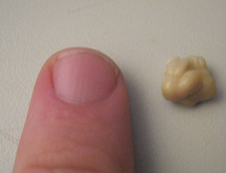 pic of tonsil stone